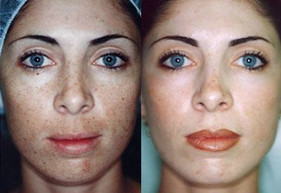 What You Should Know About Chemical Peels Before And